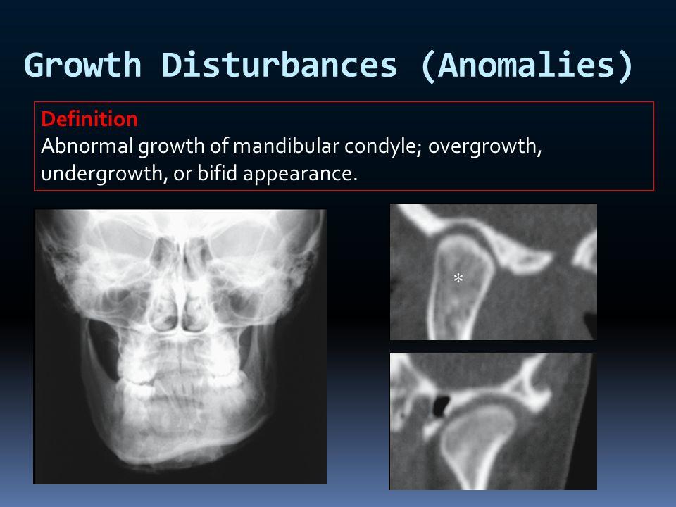 Growth Disturbances (Anomalies)
