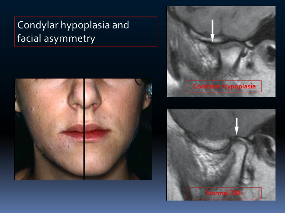 Condylar hypoplasia and facial asymmetry