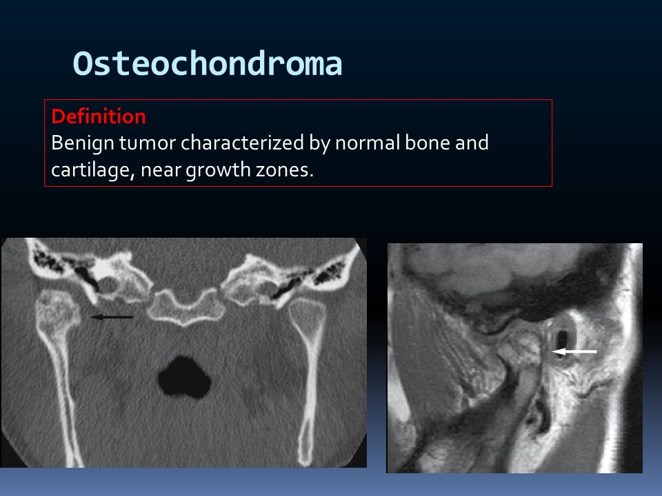 Osteochondroma Definition