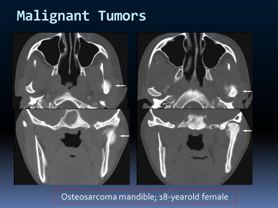 Osteosarcoma mandible; 18-yearold female