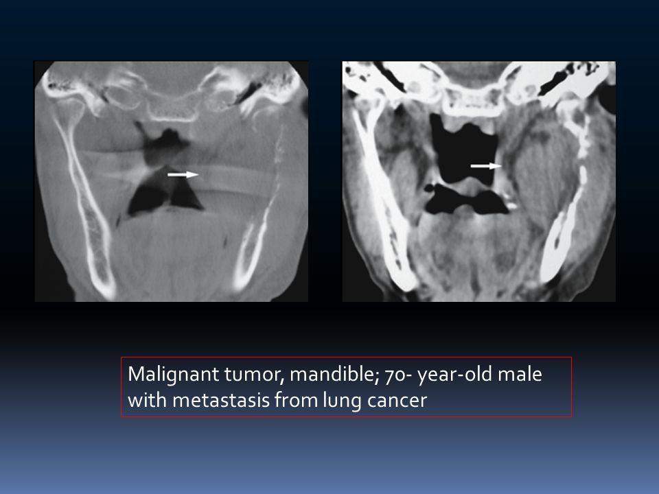 Malignant tumor, mandible; 70- year-old male with metastasis from lung cancer
