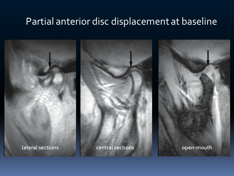 Partial anterior disc displacement at baseline