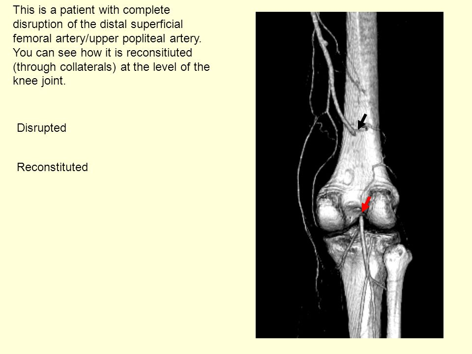 This is a patient with complete disruption of the distal superficial femoral artery/upper popliteal artery. You can see how it is reconsitiuted (through collaterals) at the level of the knee joint.