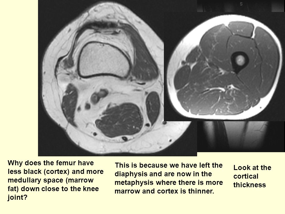 Why does the femur have less black (cortex) and more medullary space (marrow fat) down close to the knee joint