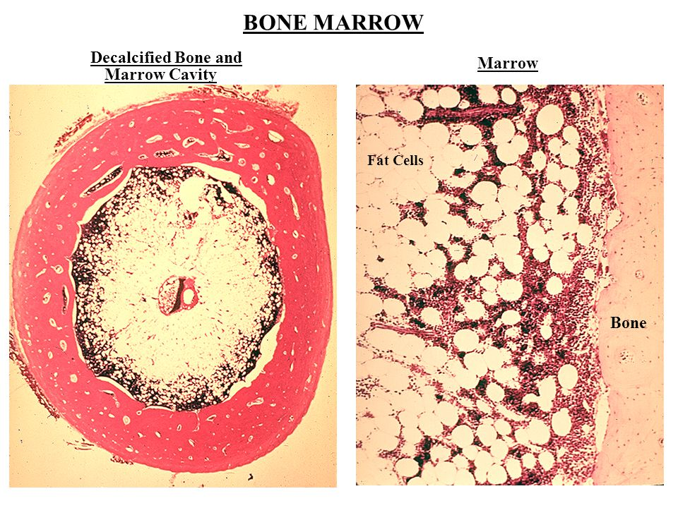 BONE MARROW Decalcified Bone and Marrow Marrow Cavity Fat Cells Bone