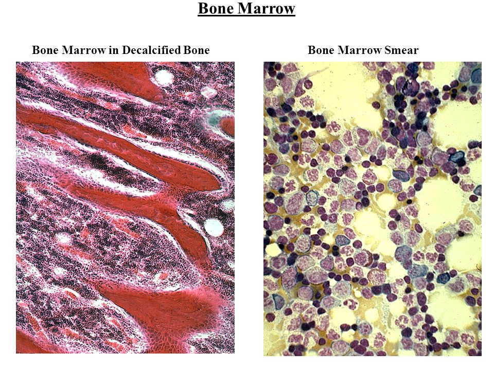 Bone Marrow Bone Marrow in Decalcified Bone Bone Marrow Smear