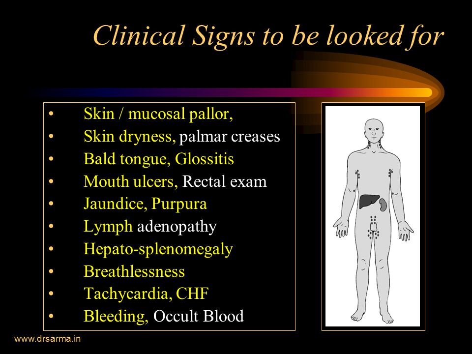 Clinical Signs to be looked for