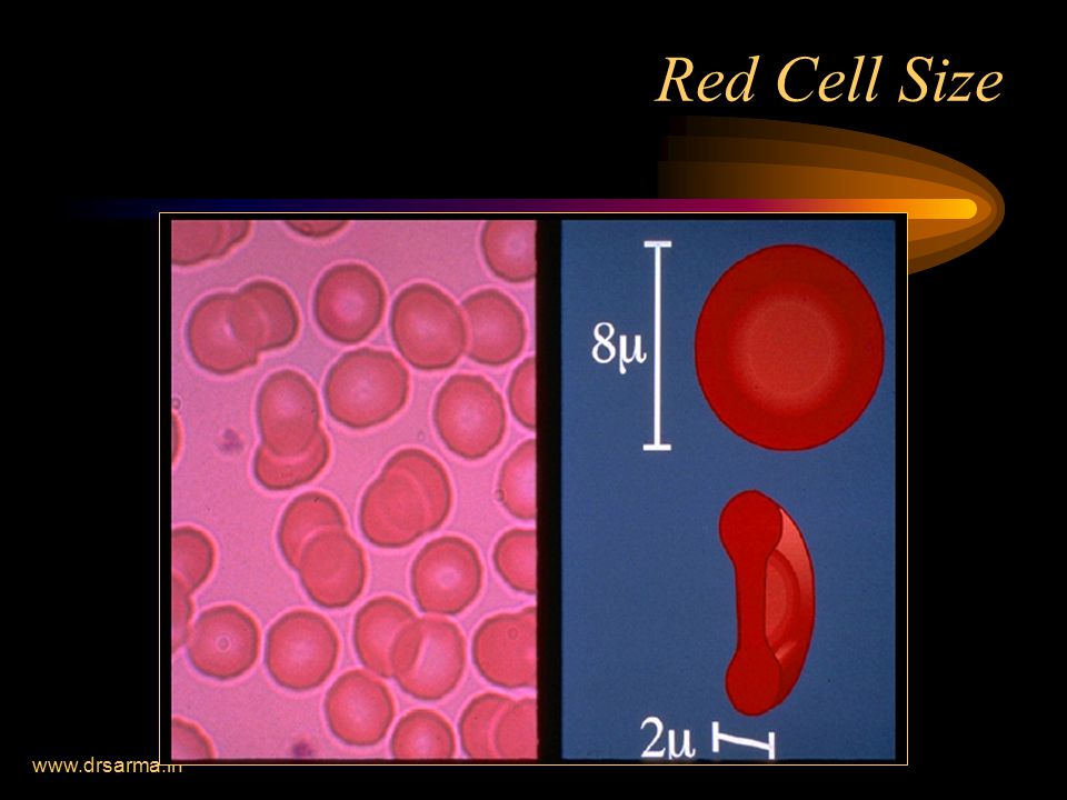 Red Cell Size www.drsarma.in