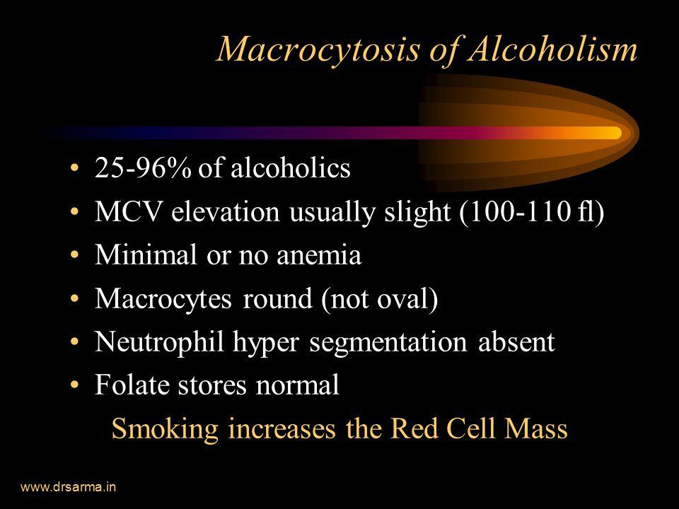 Macrocytosis of Alcoholism