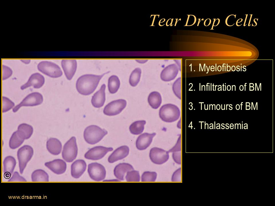 Tear Drop Cells Myelofibosis Infiltration of BM Tumours of BM