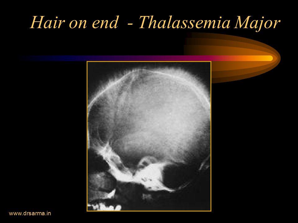 Hair on end - Thalassemia Major