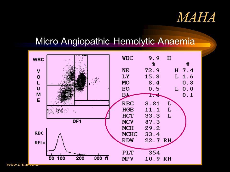 Micro Angiopathic Hemolytic Anaemia