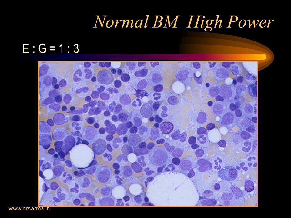 Normal BM High Power E : G = 1 : 3 www.drsarma.in