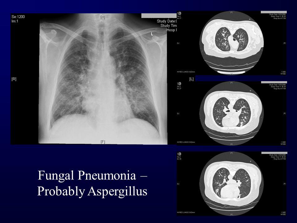 Fungal Pneumonia – Probably Aspergillus