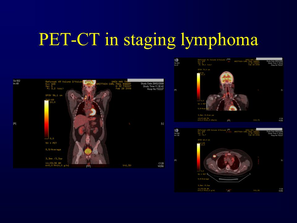 PET-CT in staging lymphoma