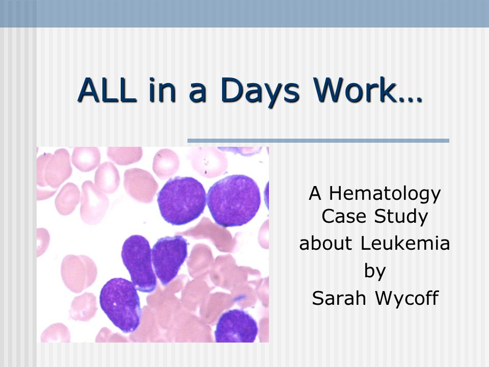 Research Paper On Leukemia