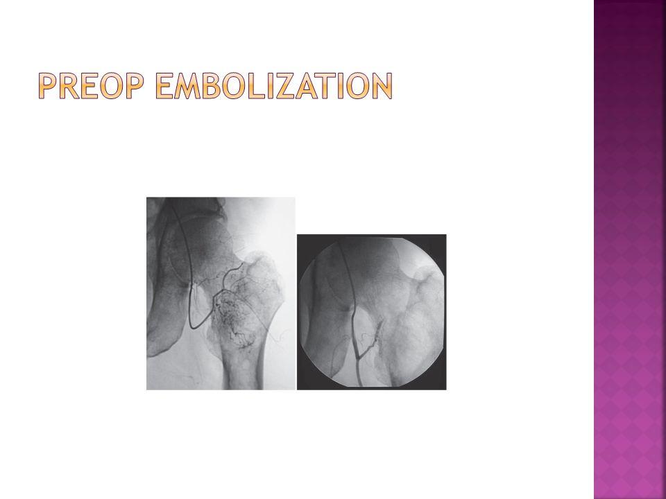 Preop embolization