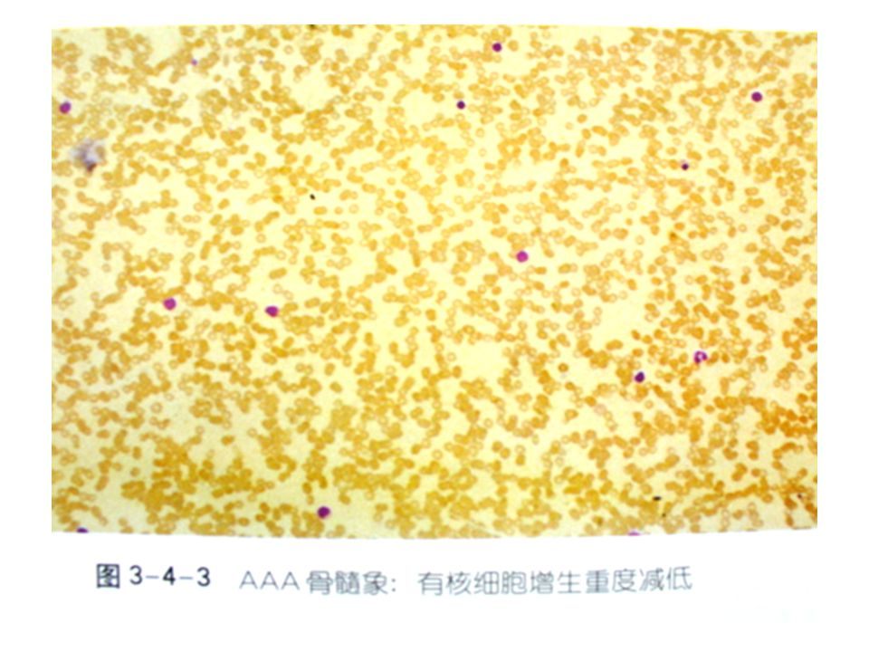 AAA blood film