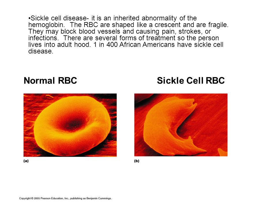 Normal RBC Sickle Cell RBC