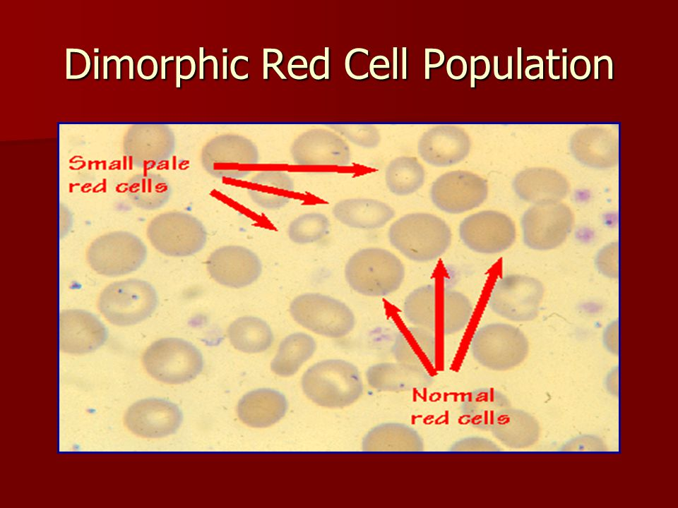 Dimorphic Red Cell Population