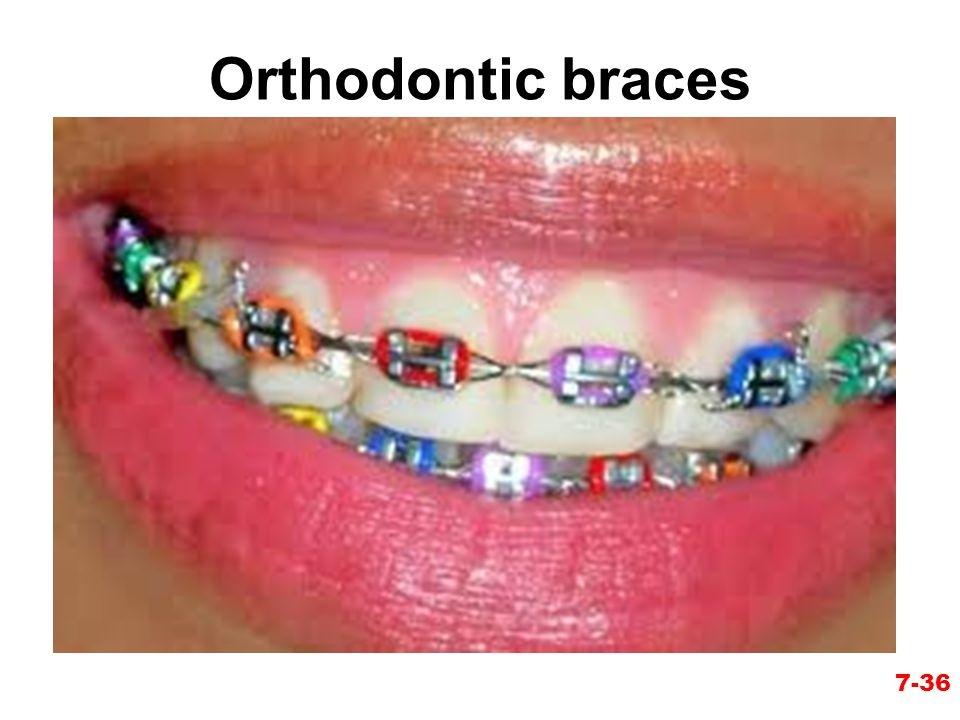 Orthodontic braces