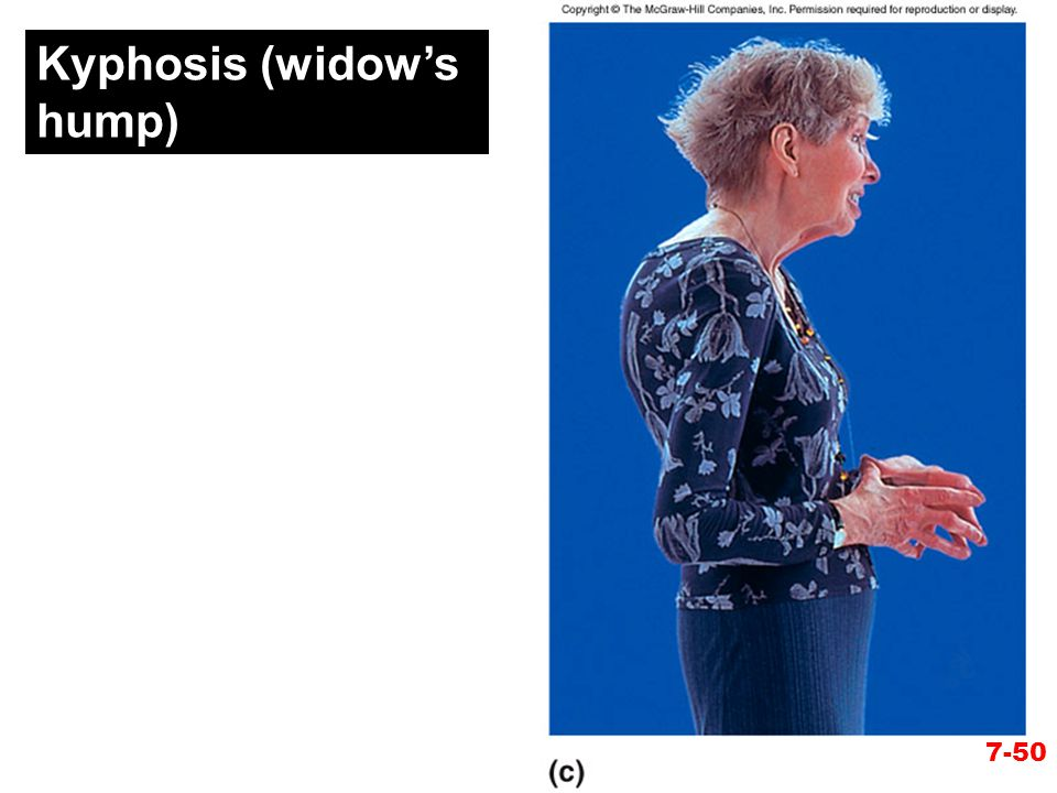 Kyphosis (widow's hump)