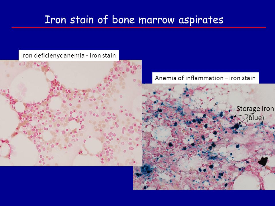 Iron stain of bone marrow aspirates