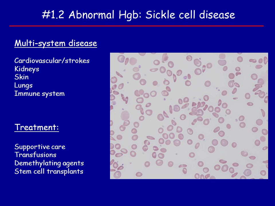 #1.2 Abnormal Hgb: Sickle cell disease