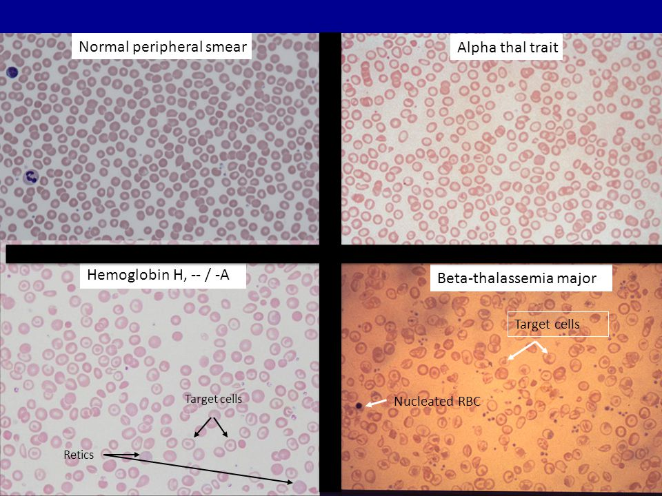 Normal peripheral smear