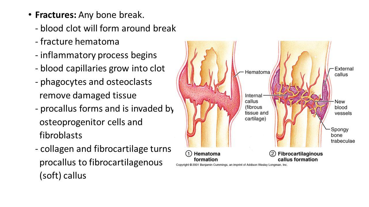 Fractures: Any bone break.