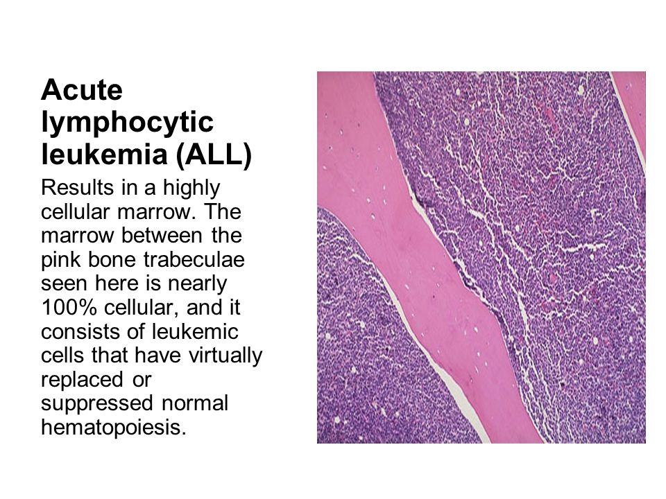 Acute lymphocytic leukemia (ALL)