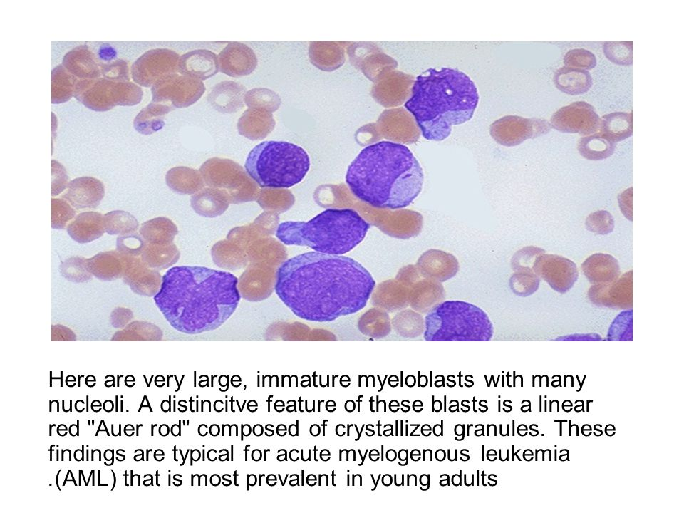 Here are very large, immature myeloblasts with many nucleoli