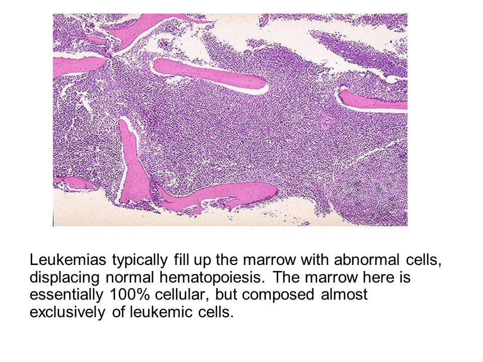 Leukemias typically fill up the marrow with abnormal cells, displacing normal hematopoiesis.