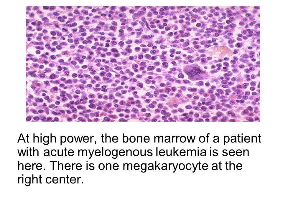 At high power, the bone marrow of a patient with acute myelogenous leukemia is seen here.