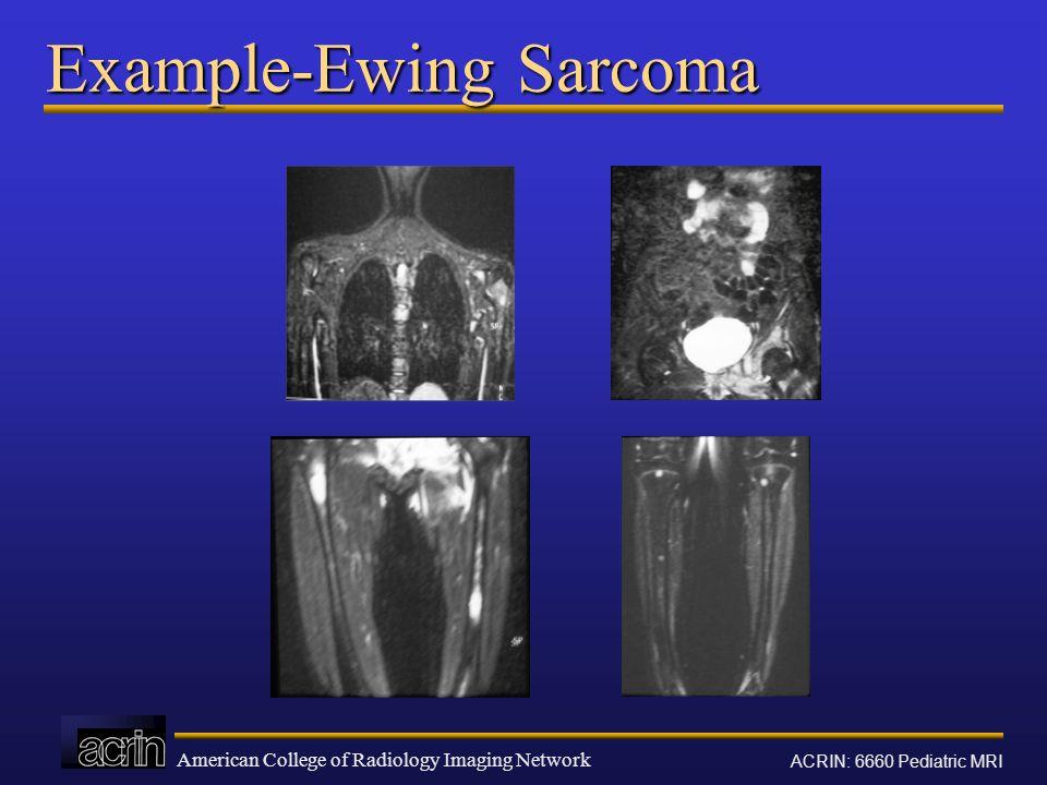 Example-Ewing Sarcoma