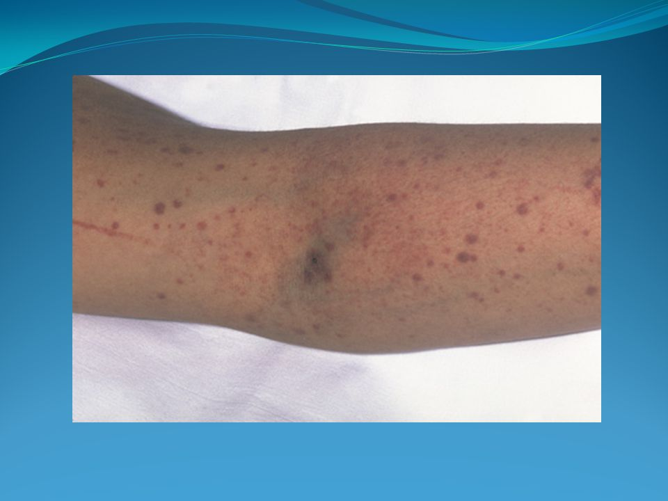 *typical picture of petechiae and purpura (small bleeds under surface)