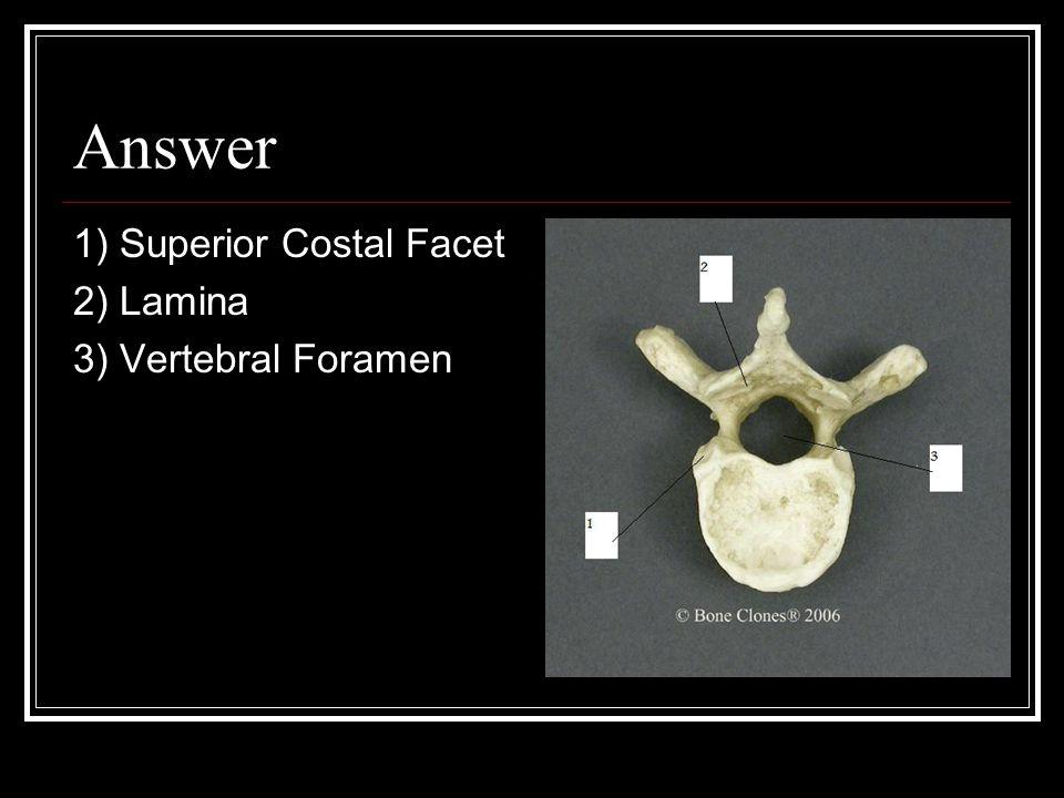 Answer 1) Superior Costal Facet 2) Lamina 3) Vertebral Foramen