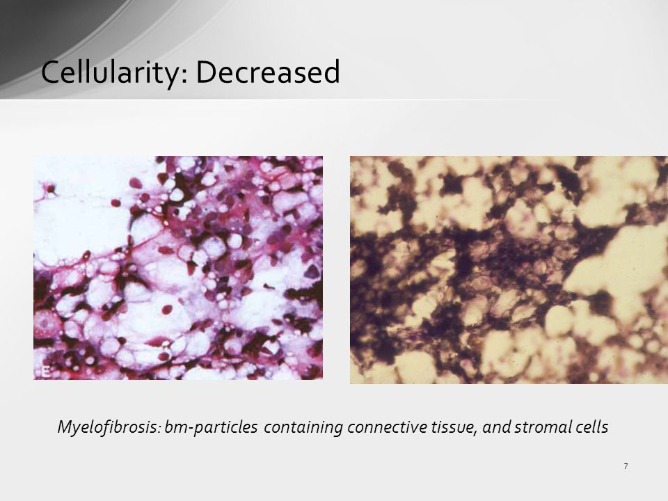 Cellularity: Decreased