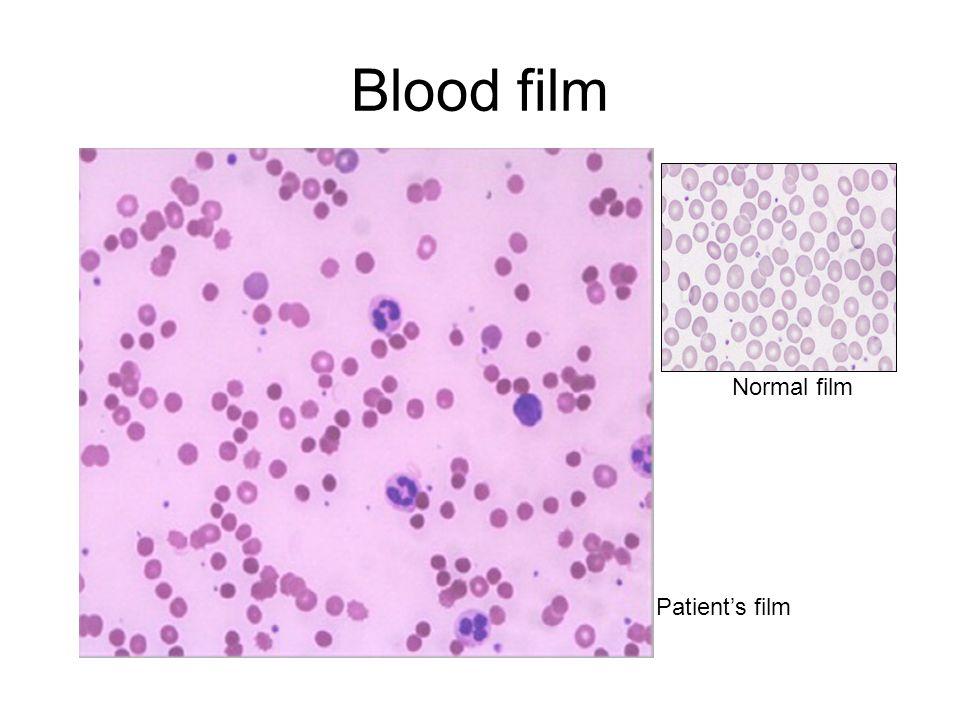 Blood film Normal film Patient's film