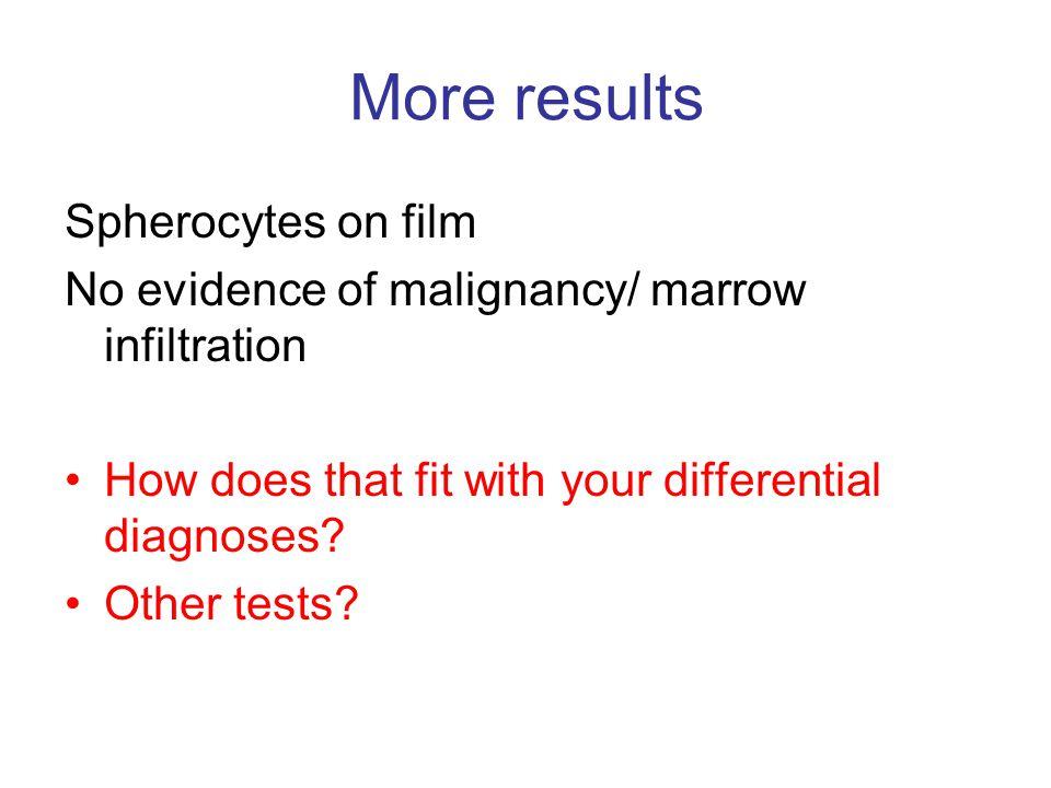 More results Spherocytes on film