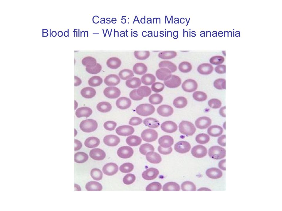 Case 5: Adam Macy Blood film – What is causing his anaemia