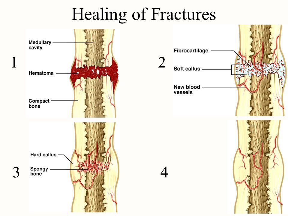 Healing of Fractures 1 2 3 4