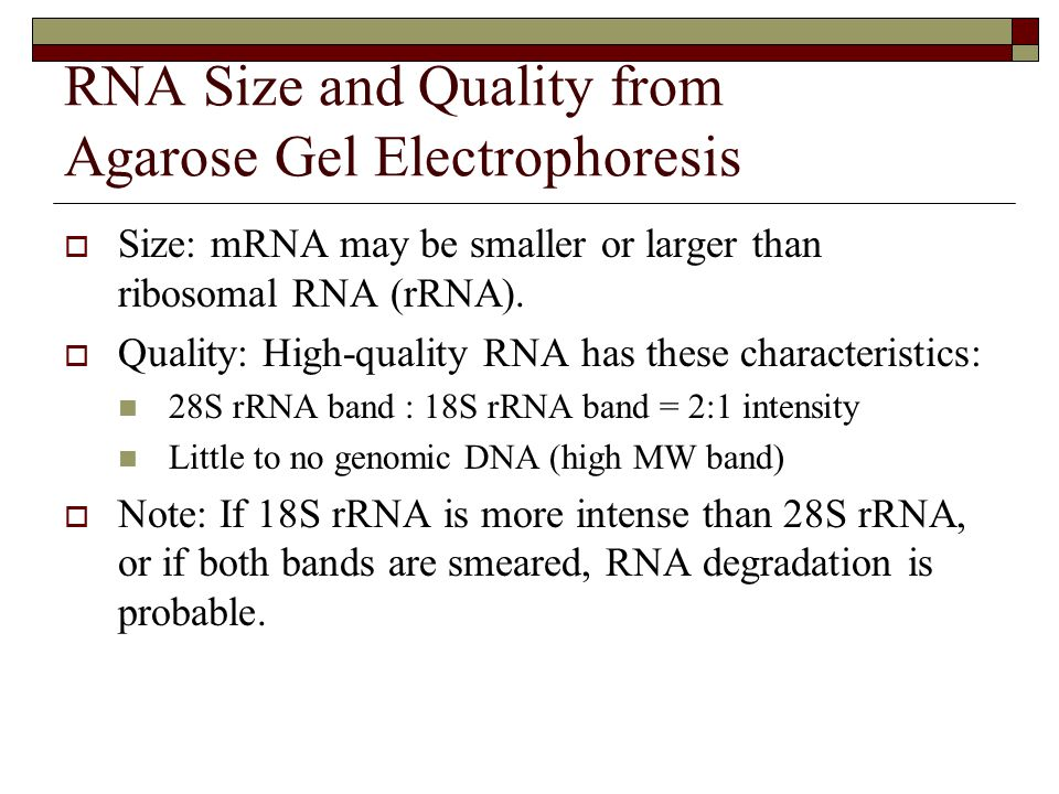 RNA Size and Quality from Agarose Gel Electrophoresis
