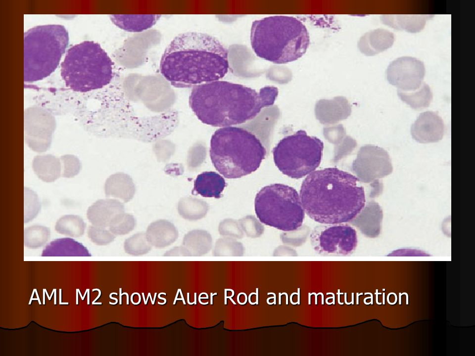 AML M2 shows Auer Rod and maturation