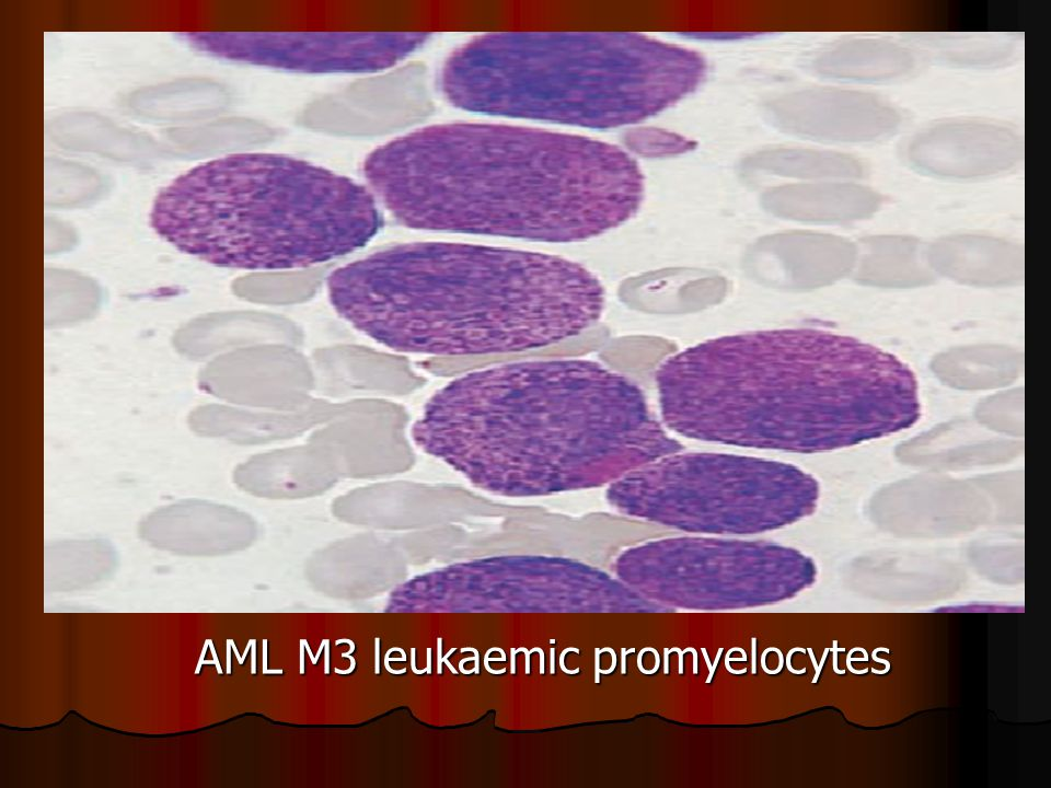 AML M3 leukaemic promyelocytes
