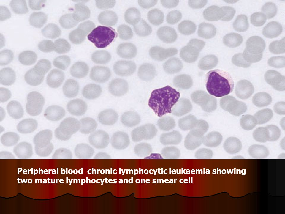 Peripheral blood chronic lymphocytic leukaemia showing