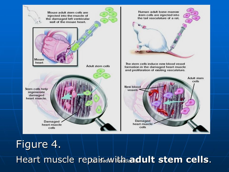 Figure 4. Heart muscle repair with adult stem cells.