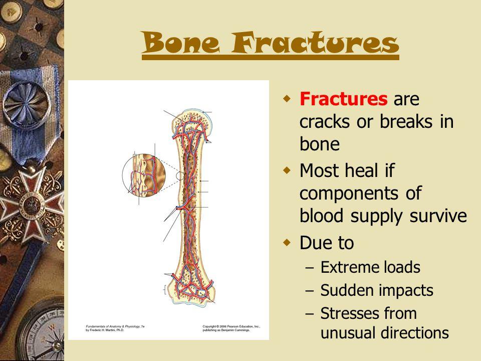 Bone Fractures Fractures are cracks or breaks in bone