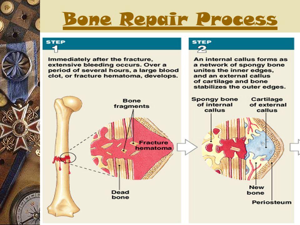 Bone Repair Process