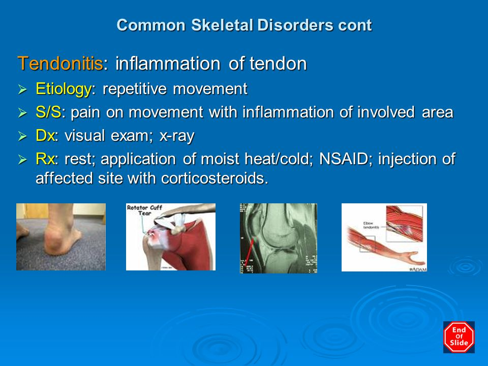 Common Skeletal Disorders cont
